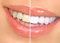 Teeth Whitening Brooklyn & Jackson Heights NY